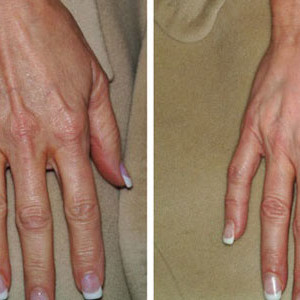 mezoterapia-skory-dloni-nieusieciowanym-kwasem-hialuronowym