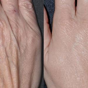 mezoterapia-skory-dloni-nieusieciowanym-kwasem-hialuronowym03
